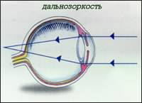 диоптрии при дальнозоркости таблица
